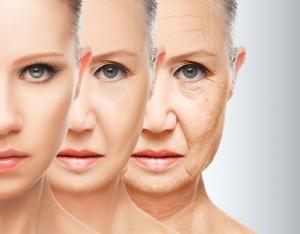 Segni dell'invecchiamento - filler
