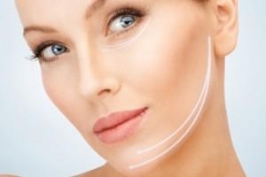 trattamento di medicina estetica con fili di trazione