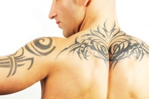 Trattamenti laser per la rimozione dei tatuaggi