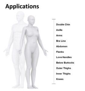 Clatuu Alpha permette il trattamento di criolipolisi su numerose zone